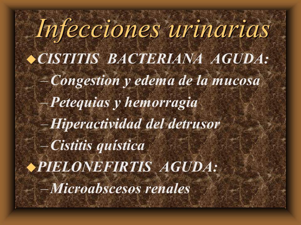 Infecciones urinarias u CISTITIS BACTERIANA AGUDA: –Congestion y edema de la mucosa –Petequias y hemorragia –Hiperactividad del detrusor –Cistitis quí