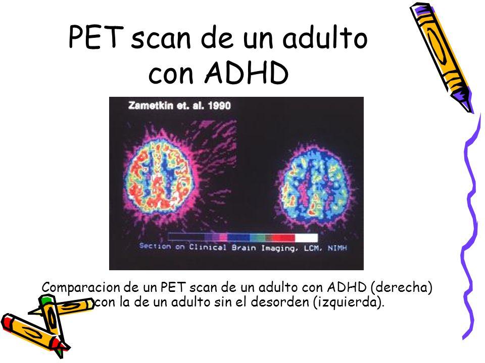 PET scan de un adulto con ADHD Comparacion de un PET scan de un adulto con ADHD (derecha) con la de un adulto sin el desorden (izquierda).