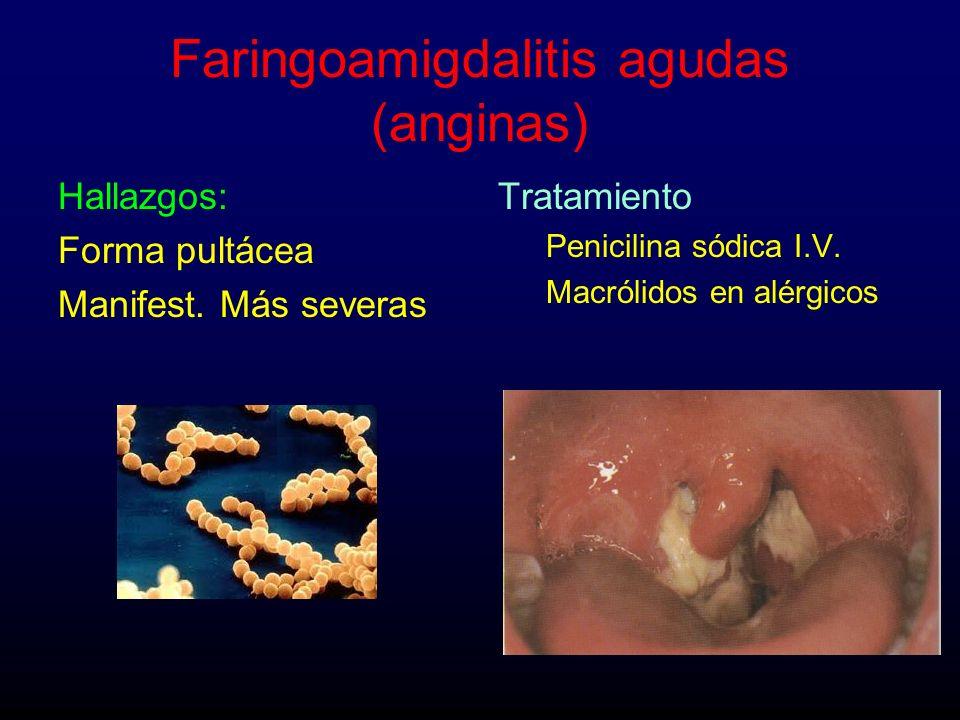 Faringoamigdalitis agudas (anginas) Hallazgos: Forma pultácea Manifest. Más severas Tratamiento Penicilina sódica I.V. Macrólidos en alérgicos