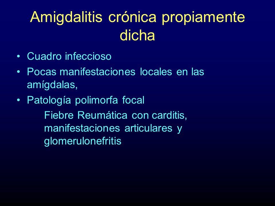 Amigdalitis crónica propiamente dicha Cuadro infeccioso Pocas manifestaciones locales en las amígdalas, Patología polimorfa focal Fiebre Reumática con