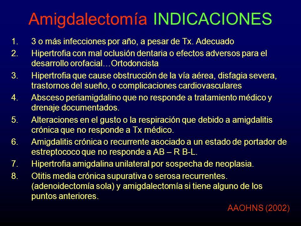 Amigdalectomía INDICACIONES 1.3 o más infecciones por año, a pesar de Tx. Adecuado 2.Hipertrofia con mal oclusión dentaria o efectos adversos para el