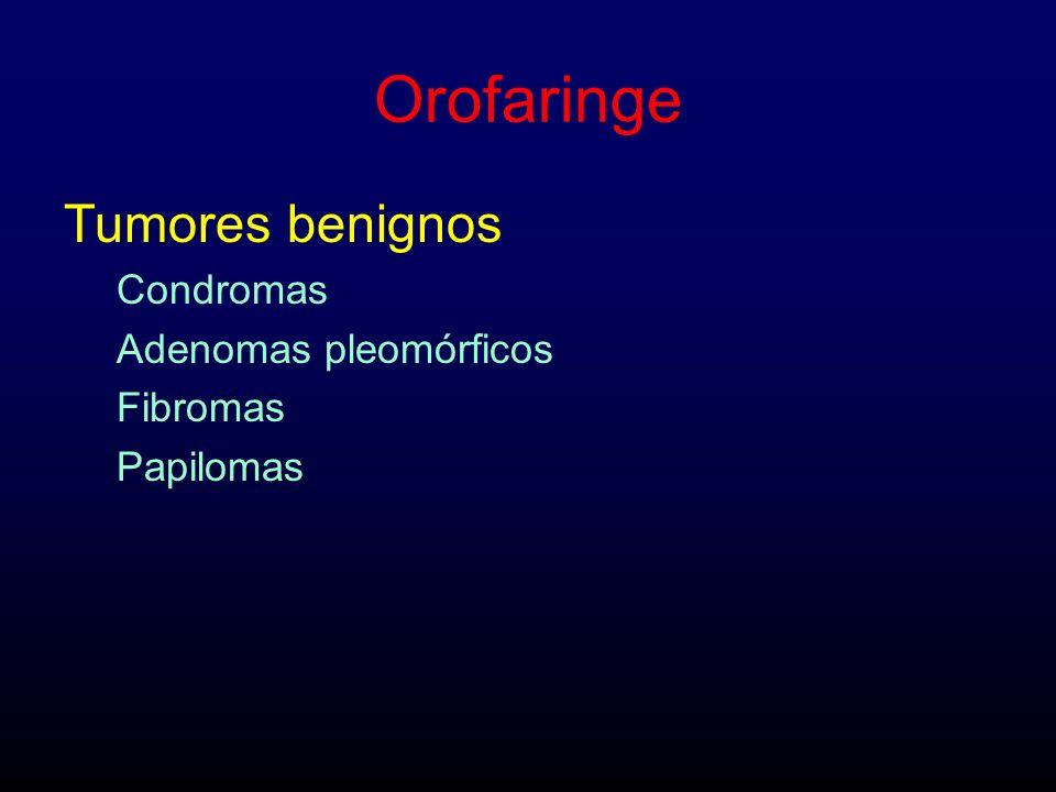Orofaringe Tumores benignos Condromas Adenomas pleomórficos Fibromas Papilomas