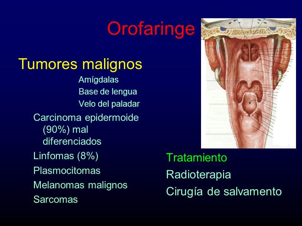 Orofaringe Tumores malignos Amígdalas Base de lengua Velo del paladar Carcinoma epidermoide (90%) mal diferenciados Linfomas (8%) Plasmocitomas Melano