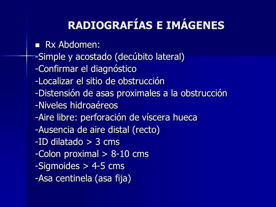 RADIOGRAFÍAS E IMÁGENES Rx Abdomen: Rx Abdomen: -Simple y acostado (decúbito lateral) -Confirmar el diagnóstico -Localizar el sitio de obstrucción -Di
