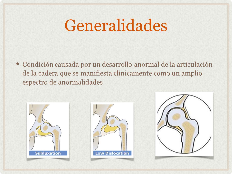 Generalidades Condición causada por un desarrollo anormal de la articulación de la cadera que se manifiesta clínicamente como un amplio espectro de an
