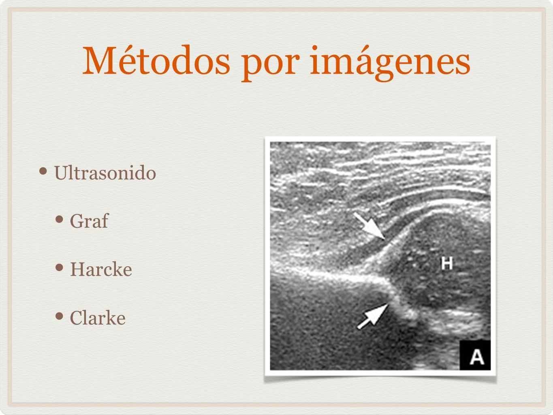 Métodos por imágenes Ultrasonido Graf Harcke Clarke