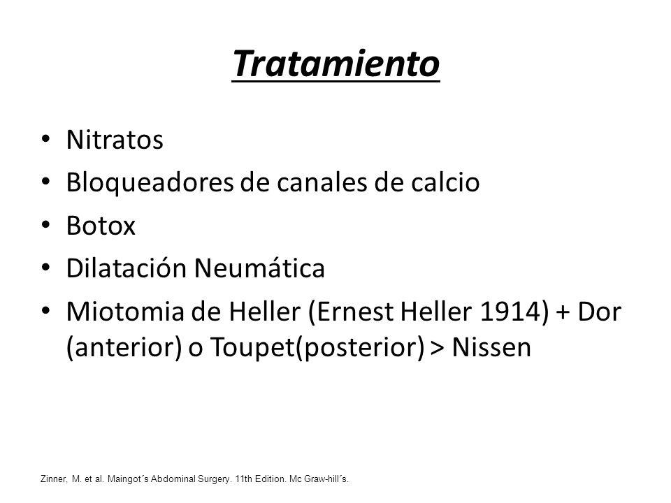 Tratamiento Nitratos Bloqueadores de canales de calcio Botox Dilatación Neumática Miotomia de Heller (Ernest Heller 1914) + Dor (anterior) o Toupet(po