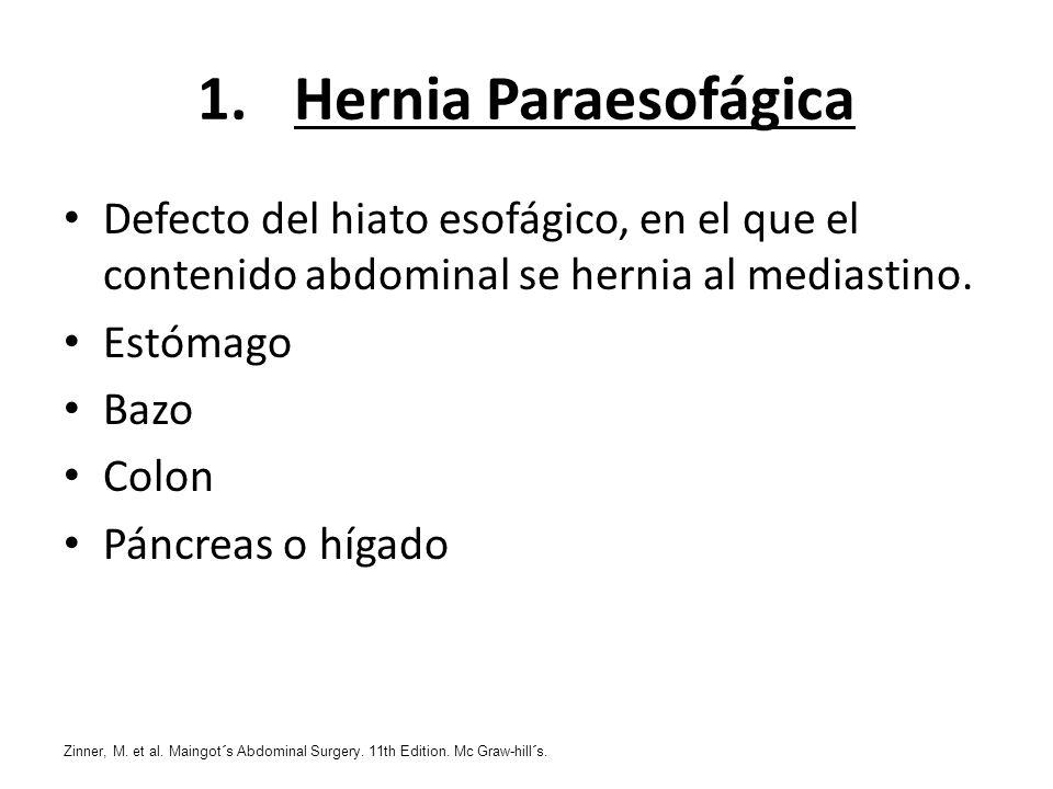 1.Hernia Paraesofágica Defecto del hiato esofágico, en el que el contenido abdominal se hernia al mediastino. Estómago Bazo Colon Páncreas o hígado Zi
