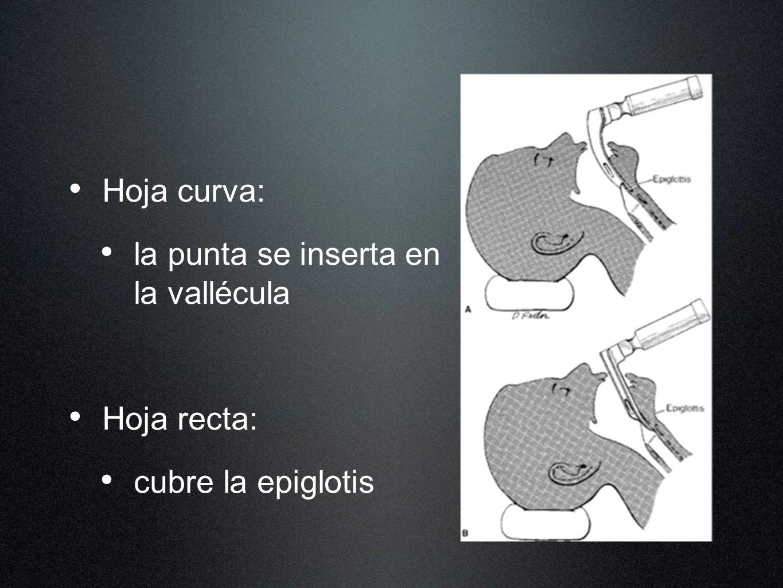 Hoja curva: la punta se inserta en la vallécula Hoja recta: cubre la epiglotis