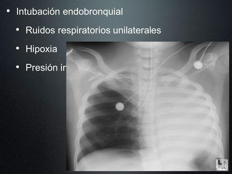 Intubación endobronquial Ruidos respiratorios unilaterales Hipoxia Presión inspiratoria elevada