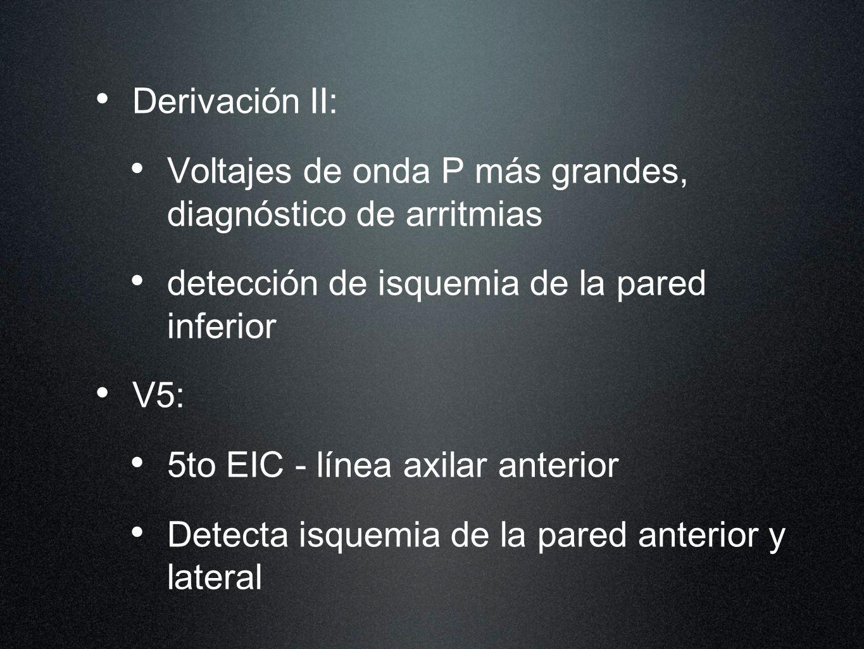 Derivación II: Voltajes de onda P más grandes, diagnóstico de arritmias detección de isquemia de la pared inferior V5: 5to EIC - línea axilar anterior