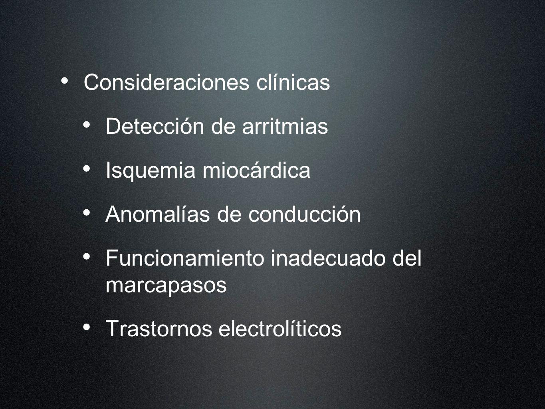 Consideraciones clínicas Detección de arritmias Isquemia miocárdica Anomalías de conducción Funcionamiento inadecuado del marcapasos Trastornos electr