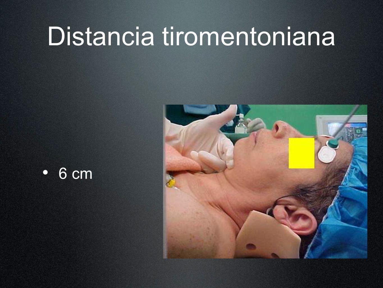 Movilidad del cuello Articulación atlantooccipital 30 - 35°