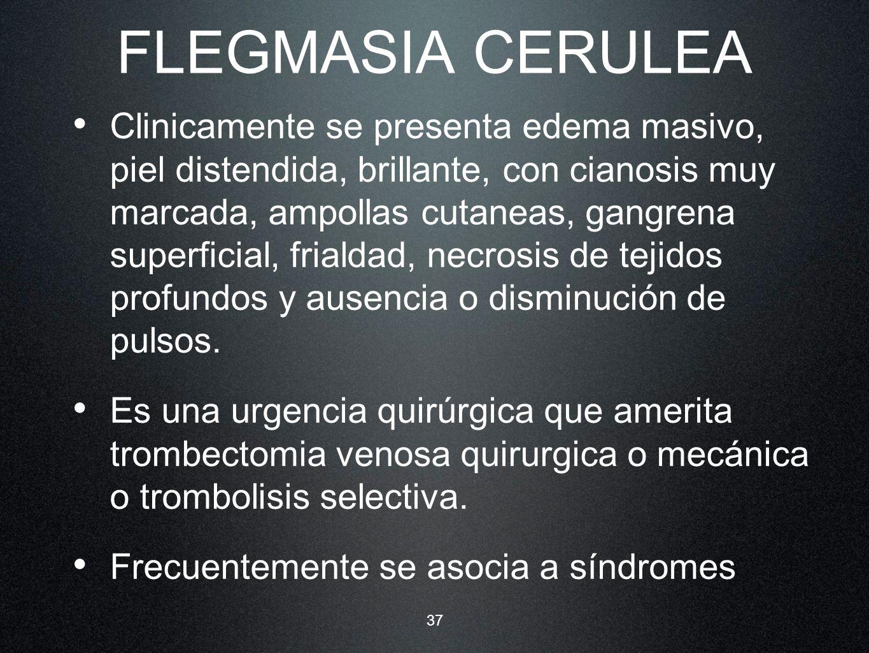 37 FLEGMASIA CERULEA Clinicamente se presenta edema masivo, piel distendida, brillante, con cianosis muy marcada, ampollas cutaneas, gangrena superfic