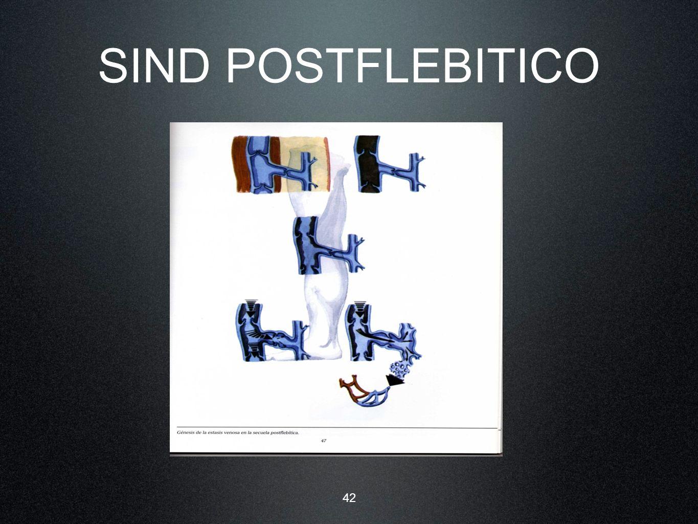 42 SIND POSTFLEBITICO