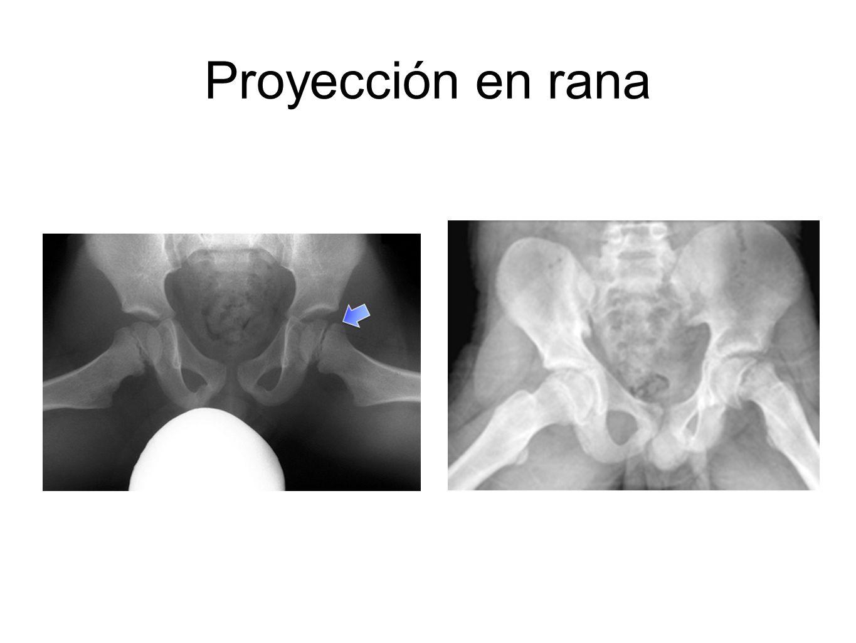Proyección en rana
