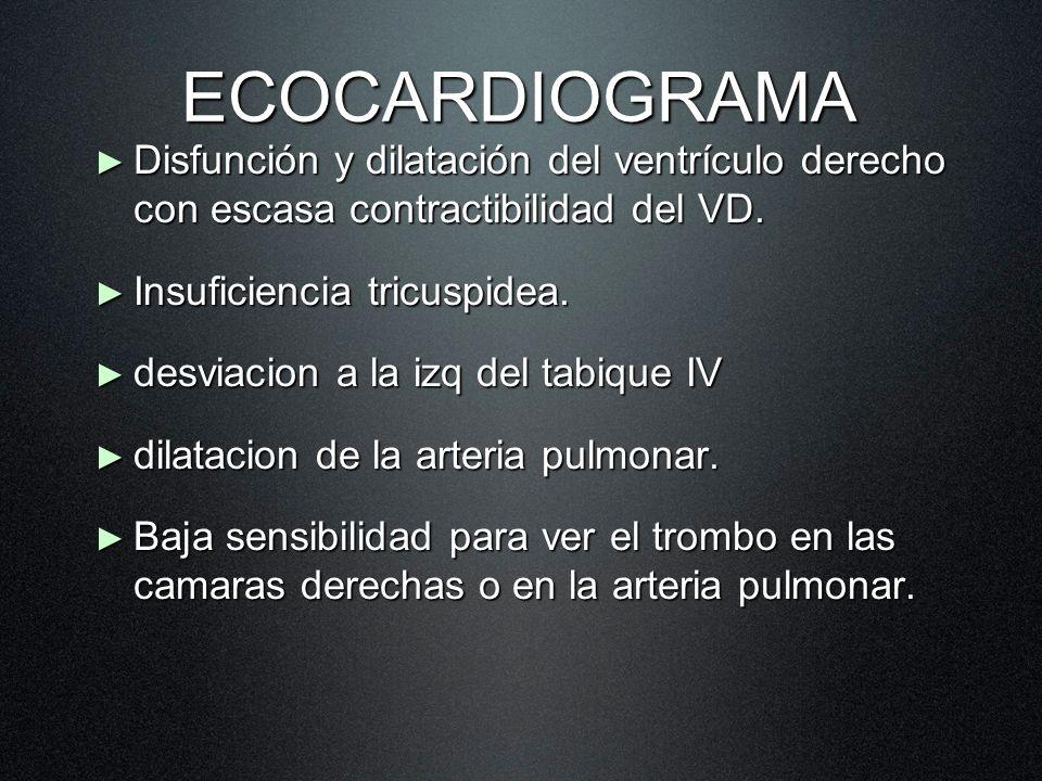 ECOCARDIOGRAMA Disfunción y dilatación del ventrículo derecho con escasa contractibilidad del VD. Disfunción y dilatación del ventrículo derecho con e