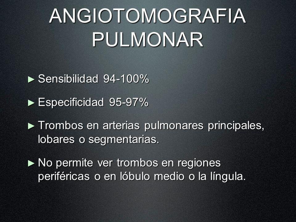 ANGIOTOMOGRAFIA PULMONAR Sensibilidad 94-100% Sensibilidad 94-100% Especificidad 95-97% Especificidad 95-97% Trombos en arterias pulmonares principale