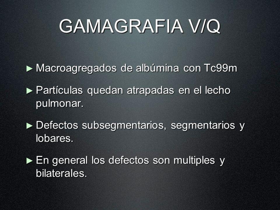 GAMAGRAFIA V/Q Macroagregados de albúmina con Tc99m Macroagregados de albúmina con Tc99m Partículas quedan atrapadas en el lecho pulmonar. Partículas