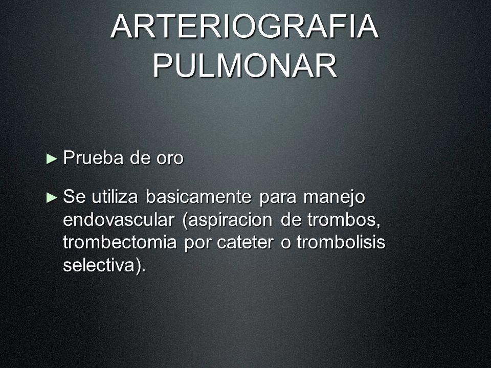 ARTERIOGRAFIA PULMONAR Prueba de oro Prueba de oro Se utiliza basicamente para manejo endovascular (aspiracion de trombos, trombectomia por cateter o