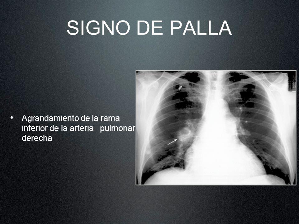 SIGNO DE PALLA Agrandamiento de la rama inferior de la arteria pulmonar derecha