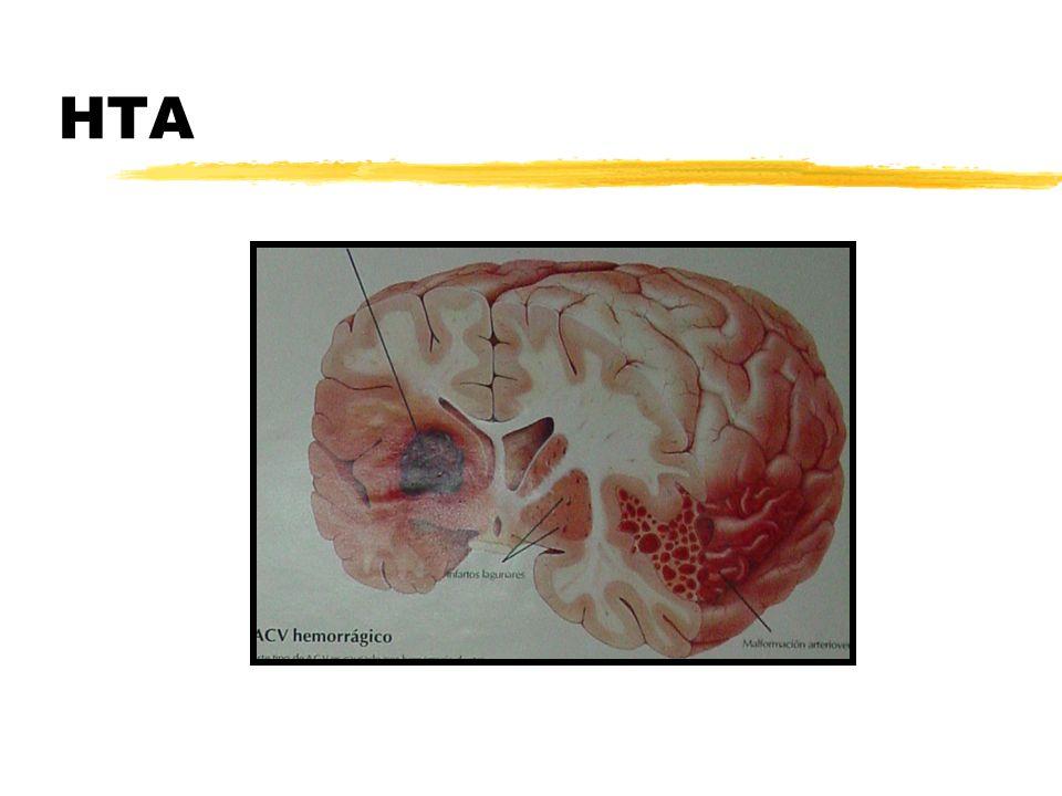Otras causas no quirúrgicas zDrogas: Simpaticomiméticas (Cocaína) zTrombosis de Senos Durales zCoagulopatías z Arteriopatías: -Angiopatía Amiloide -Lipohialinosis -Arteritis Cerebral z Infecciones