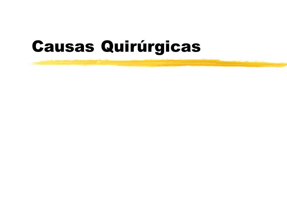 Causas Quirúrgicas