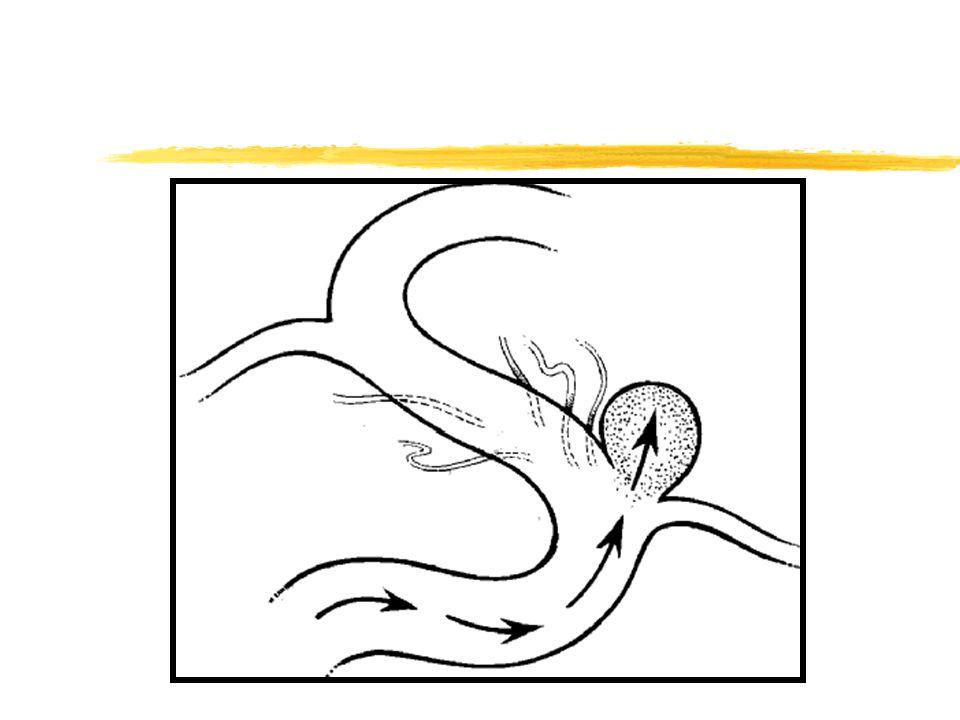 MAV zClasificación: -Telangiectasias -Angiomas Venosos -Angiomas Cavernosos -Malformaciones Arteriovenosas zAusencia de arteriolas, vénulas y capilares