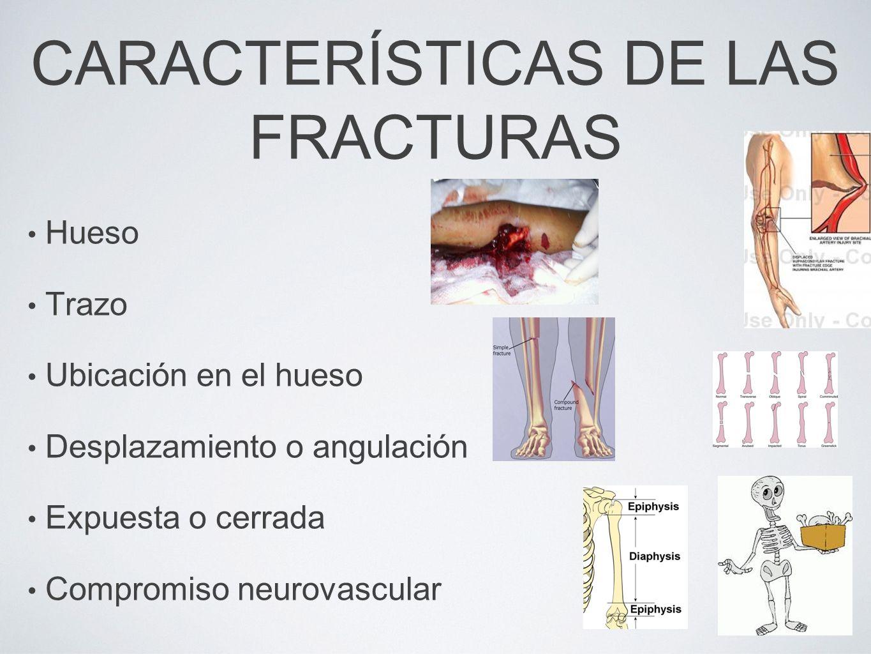GRADO III B El daño a los tejidos blandos no permiten la cobertura ósea en el primer tiempo quirúrgico