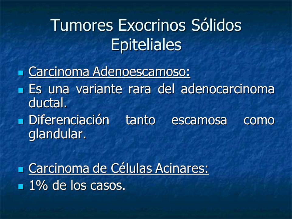 Tumores Exocrinos Sólidos Epiteliales Carcinoma Adenoescamoso: Carcinoma Adenoescamoso: Es una variante rara del adenocarcinoma ductal.