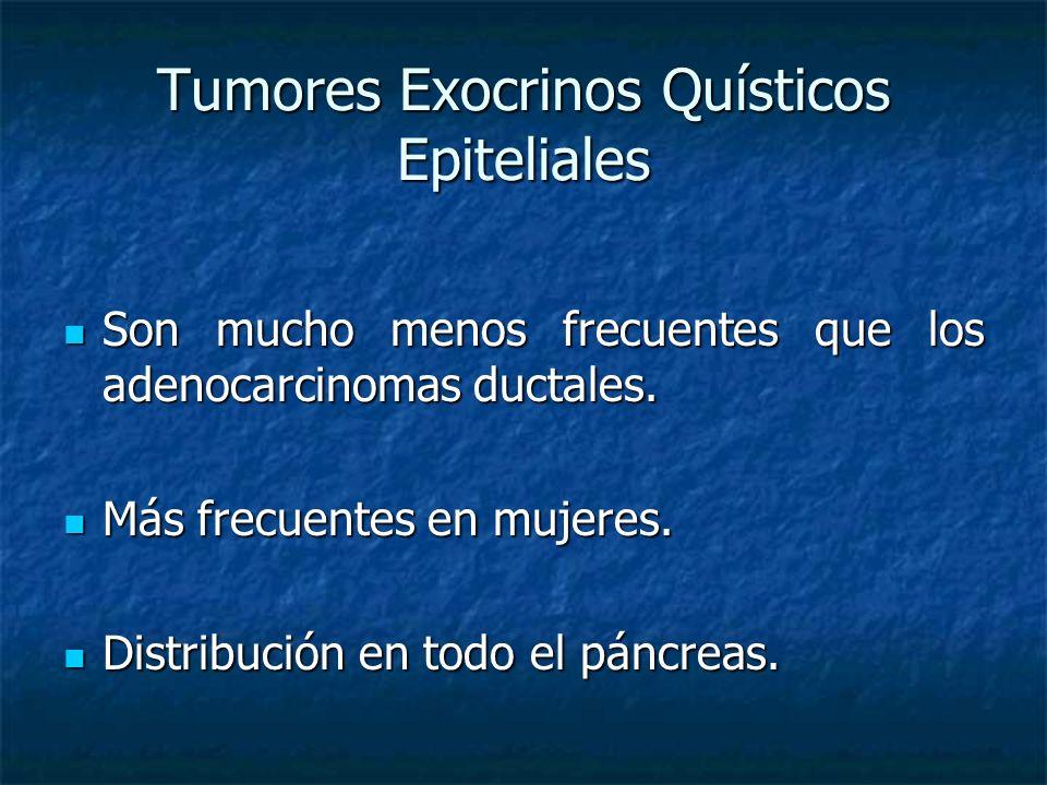 Tumores Exocrinos Quísticos Epiteliales Son mucho menos frecuentes que los adenocarcinomas ductales.