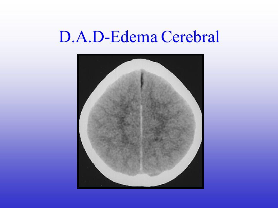 Métodos Diagnósticos Anamnesis Examen Neurológico Completo Rx Simples TAC??.