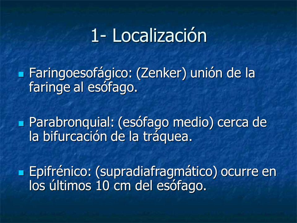 1- Localización Faringoesofágico: (Zenker) unión de la faringe al esófago. Faringoesofágico: (Zenker) unión de la faringe al esófago. Parabronquial: (