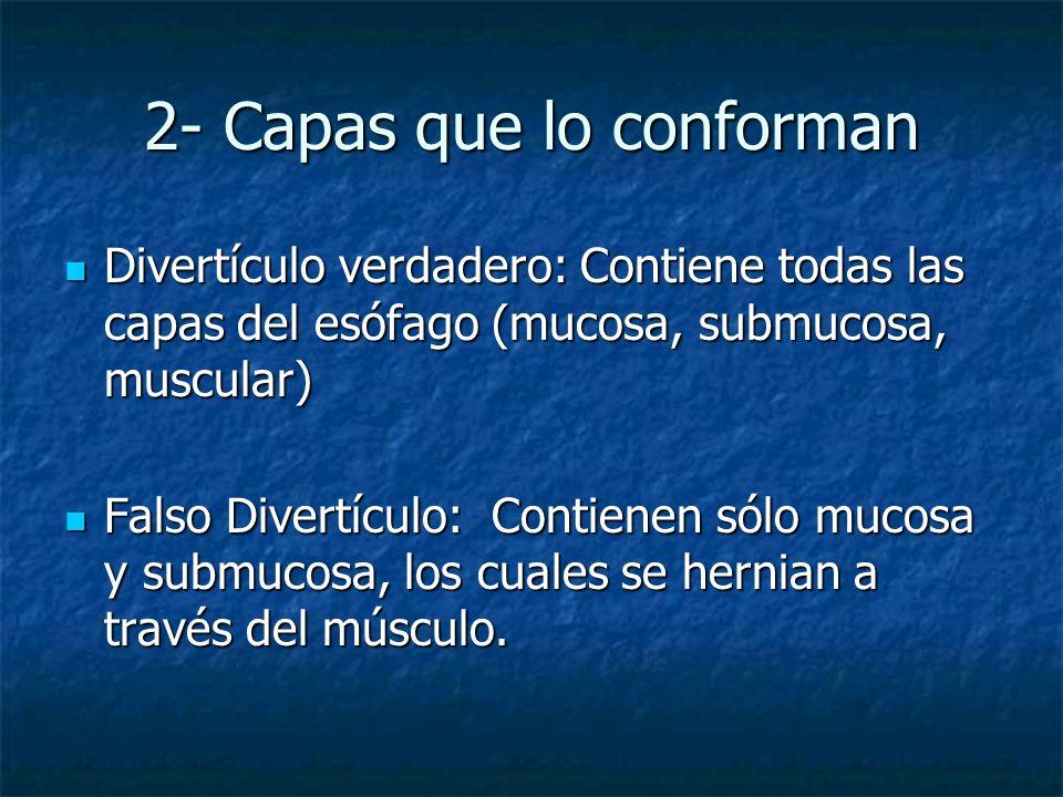 2- Capas que lo conforman Divertículo verdadero: Contiene todas las capas del esófago (mucosa, submucosa, muscular) Divertículo verdadero: Contiene to