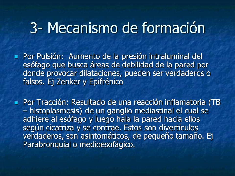 3- Mecanismo de formación Por Pulsión: Aumento de la presión intraluminal del esófago que busca áreas de debilidad de la pared por donde provocar dila