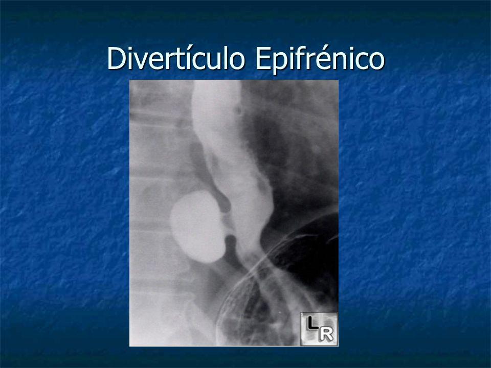 Divertículo Epifrénico