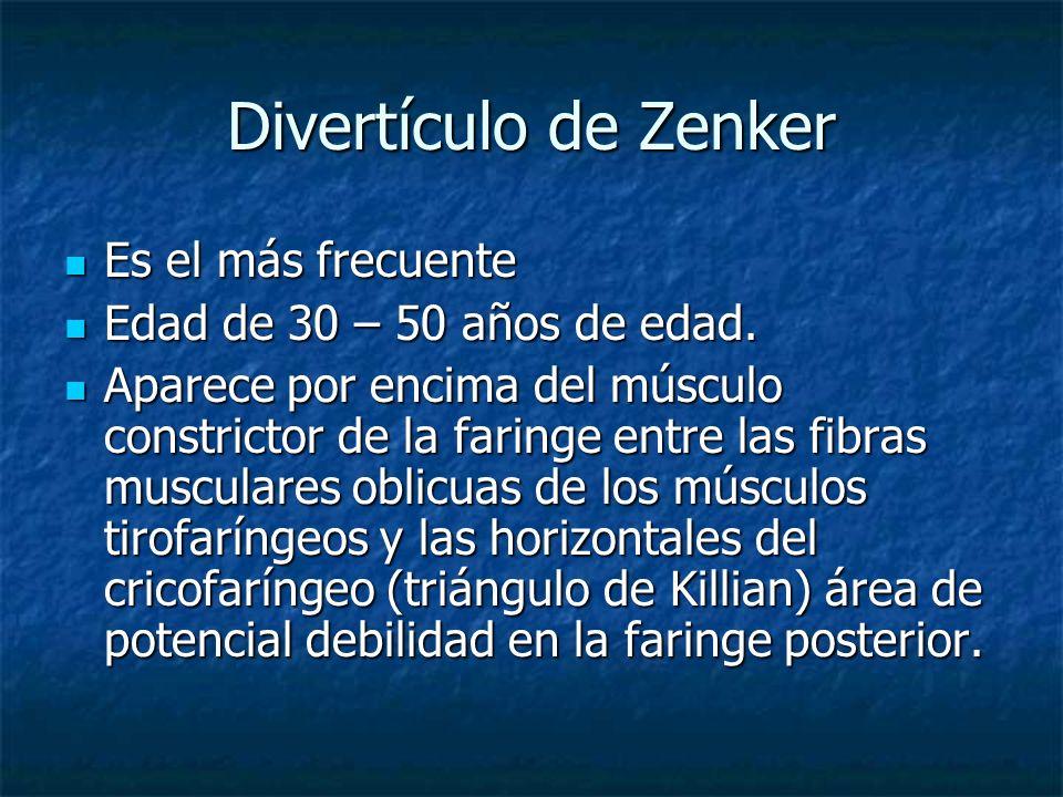 Divertículo de Zenker Es el más frecuente Es el más frecuente Edad de 30 – 50 años de edad. Edad de 30 – 50 años de edad. Aparece por encima del múscu