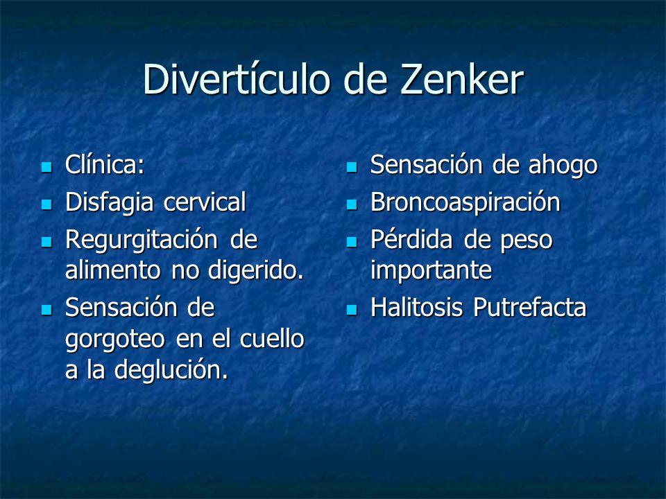 Divertículo de Zenker Clínica: Clínica: Disfagia cervical Disfagia cervical Regurgitación de alimento no digerido. Regurgitación de alimento no digeri