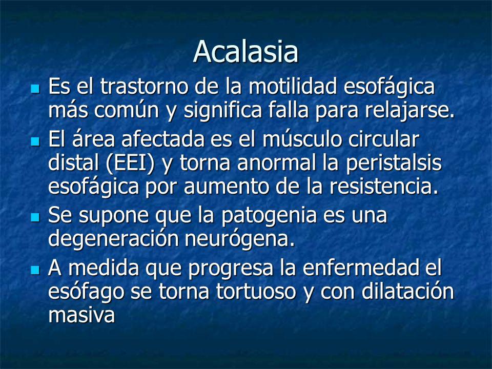 Acalasia Es el trastorno de la motilidad esofágica más común y significa falla para relajarse. Es el trastorno de la motilidad esofágica más común y s