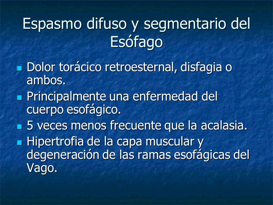 Espasmo difuso y segmentario del Esófago Dolor torácico retroesternal, disfagia o ambos. Dolor torácico retroesternal, disfagia o ambos. Principalment