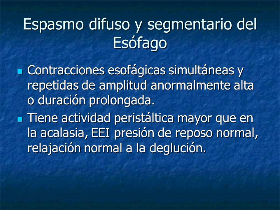 Espasmo difuso y segmentario del Esófago Contracciones esofágicas simultáneas y repetidas de amplitud anormalmente alta o duración prolongada. Contrac