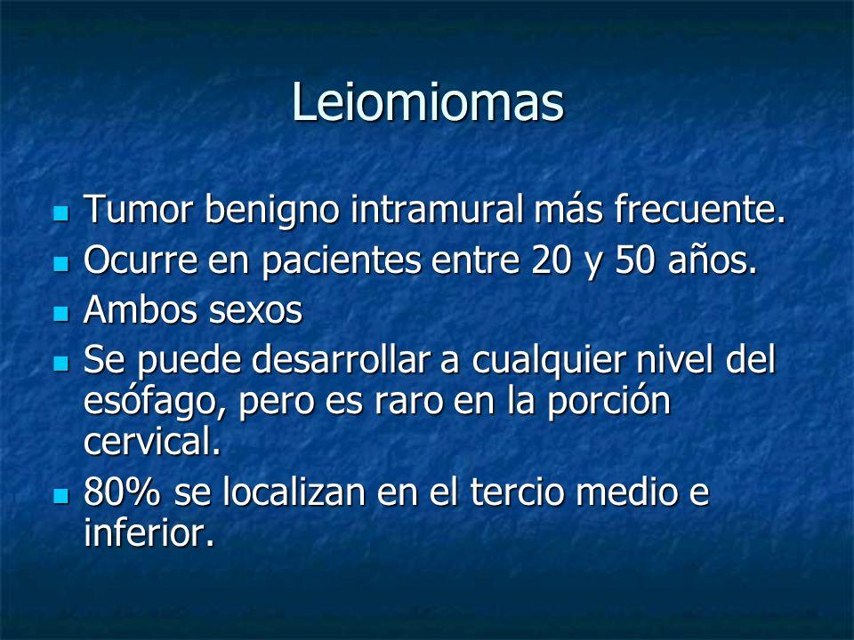 Leiomiomas Tumor benigno intramural más frecuente. Tumor benigno intramural más frecuente. Ocurre en pacientes entre 20 y 50 años. Ocurre en pacientes