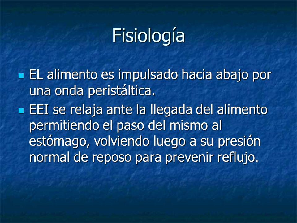 Acalasia Frecuente Neumonía por broncoaspiración.Frecuente Neumonía por broncoaspiración.