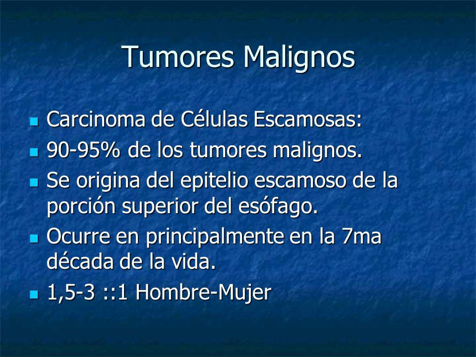 Tumores Malignos Carcinoma de Células Escamosas: Carcinoma de Células Escamosas: 90-95% de los tumores malignos. 90-95% de los tumores malignos. Se or