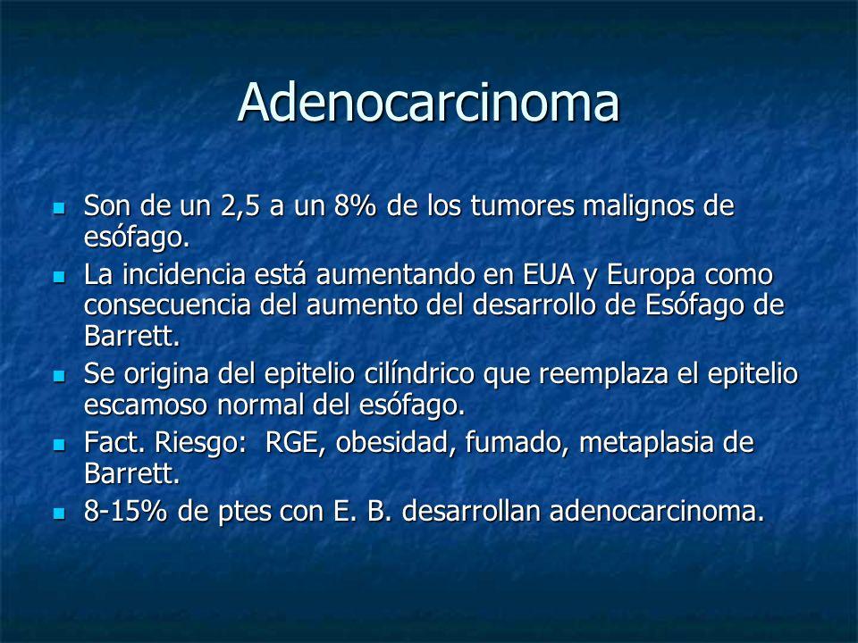 Adenocarcinoma Son de un 2,5 a un 8% de los tumores malignos de esófago. Son de un 2,5 a un 8% de los tumores malignos de esófago. La incidencia está