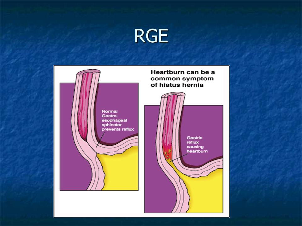 Reflujo Gastroesofágico (RGE) Es la Responsable de un 75% de la patología del esófago.