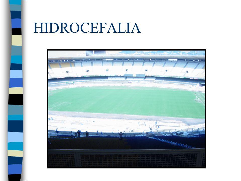 Hidrocefalia a tensión cambiante n CLÍNICA (Triada): Apraxia de marcha Alteración memoria reciente Incontinencia urinaria *No cefalea, generalmente en adultos mayores