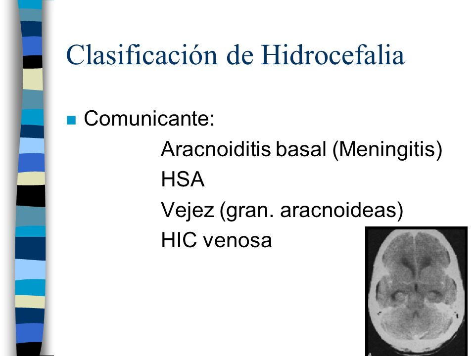 Clasificación de Hidrocefalia n No comunicante: Obstrucción en foramen de Monro Estenosis acueductal Oclusión de Luschka-Magendie* Tumores, sangrado, infección, inflamación, congénito *Hidrocefalia hidromiélica