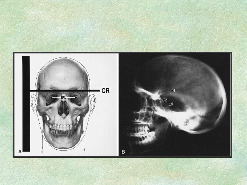 Resonancia Magnética Nuclear §Más detalle de los tejidos (Sag/Cor/Axial): §-Delimita mejor tumores/edema §-Extensión de MAV/aneurisma §-Metabolismo/Funcional -NO HUESO Intensidades T1 y T2 (líquido)