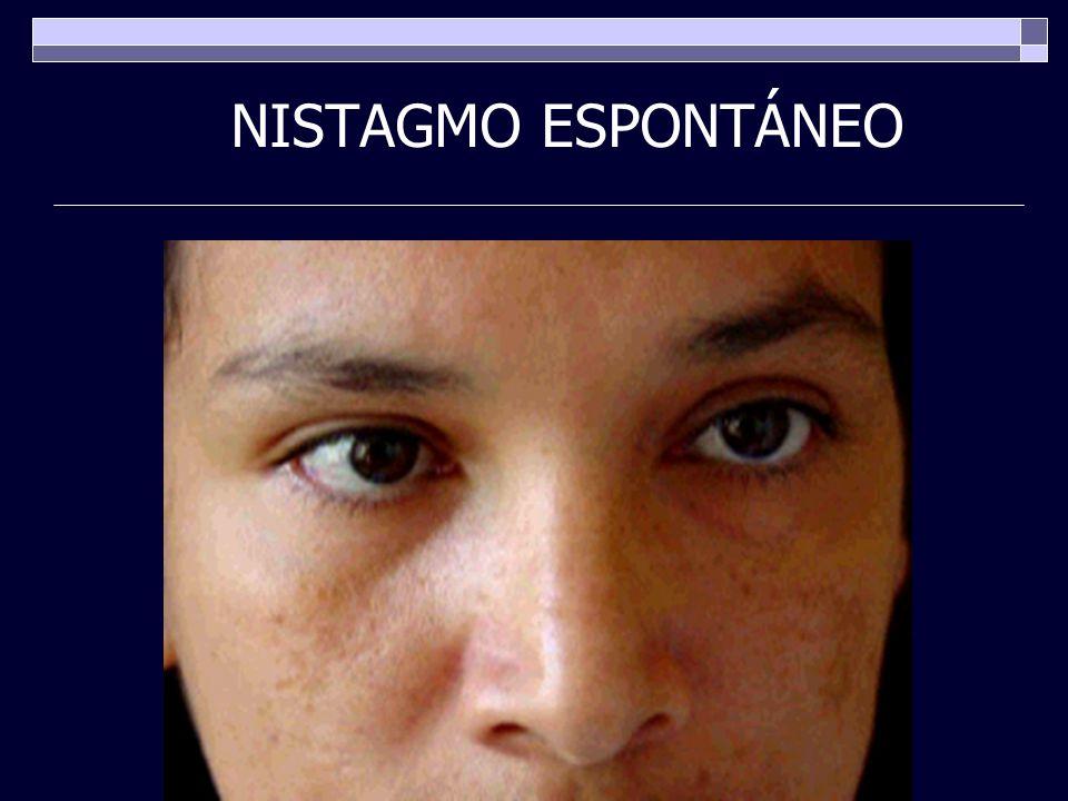 NISTAGMO ESPONTÁNEO